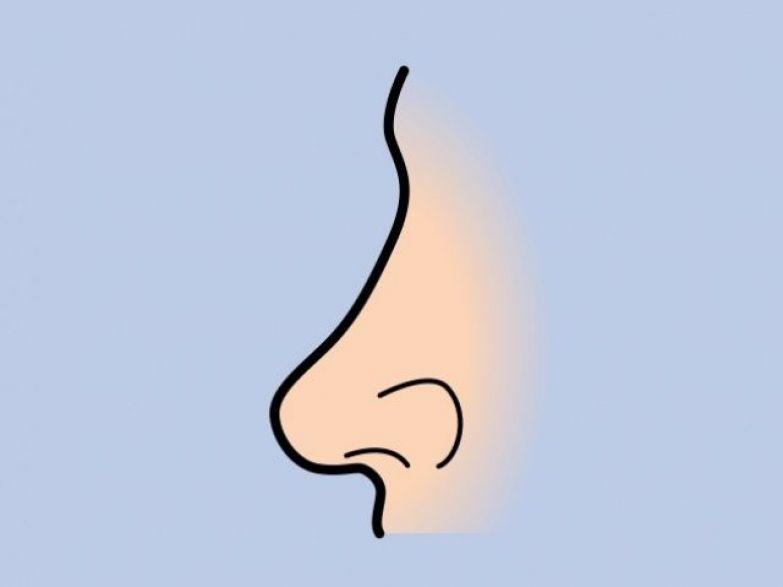 Маликова до пластики носа
