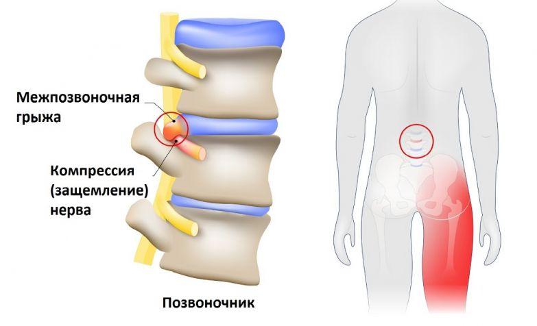 защемление седалищного нерва грыжа