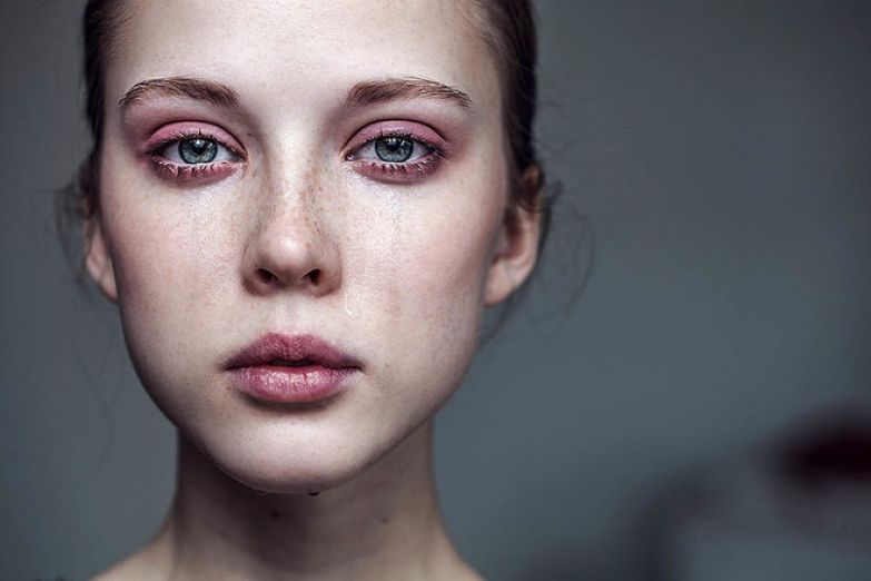 Как быстро убрать покраснения и отечность после слез (фото 1)
