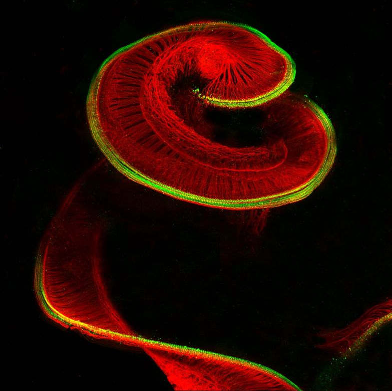 Sensory hair cells (red) and neurons (green) reveal the structure of a rat cochlea (part of the inner ear).
