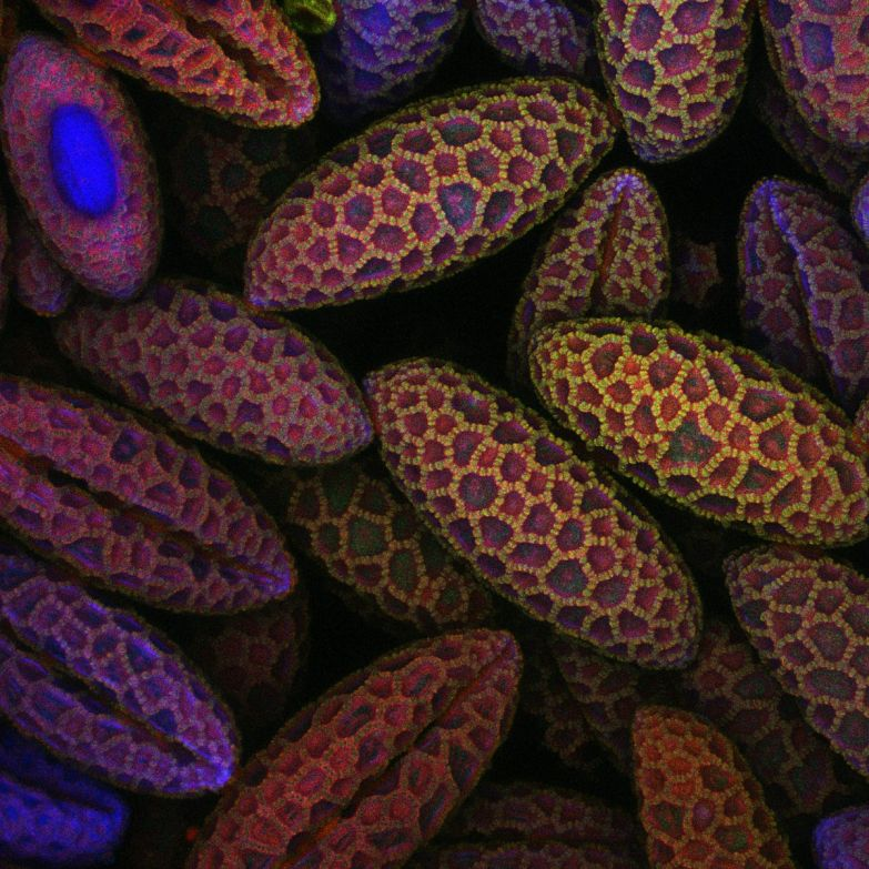 These are grains of lily pollen.