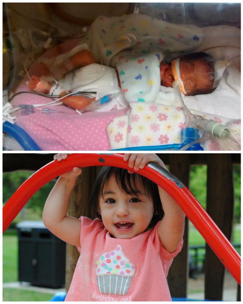 12. Джоэлла преждевременность, ребенок, роды, тогда и сейчас