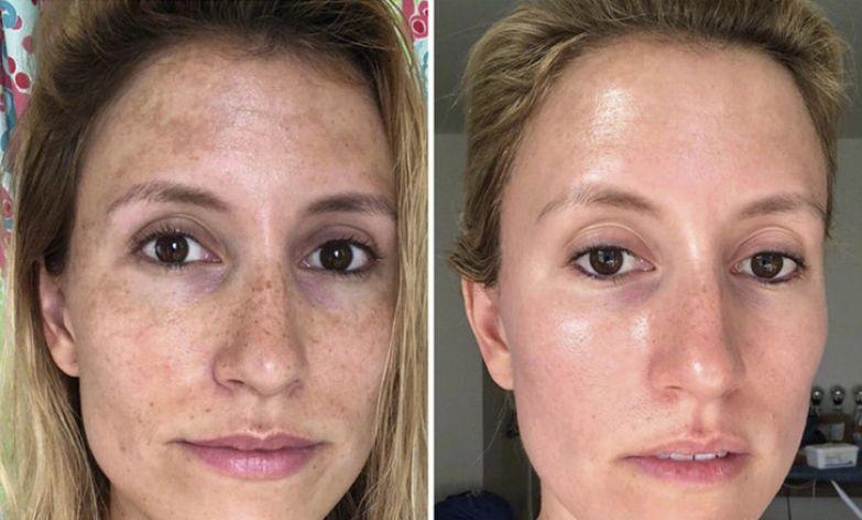 11 человек, которые сделали свою кожу идеальной, не потратив на это целое состояние