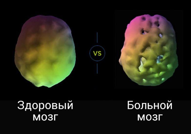 Нейробиолог омолодил свой мозг и теперь рассказывает всем, как сделать так же