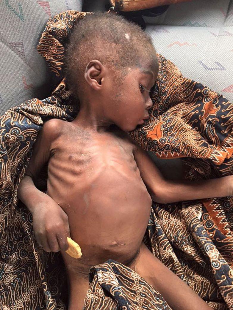 Организм ребенка был сильно ослаблен из-за истощения и глистов мальчик, нигерия, спасение