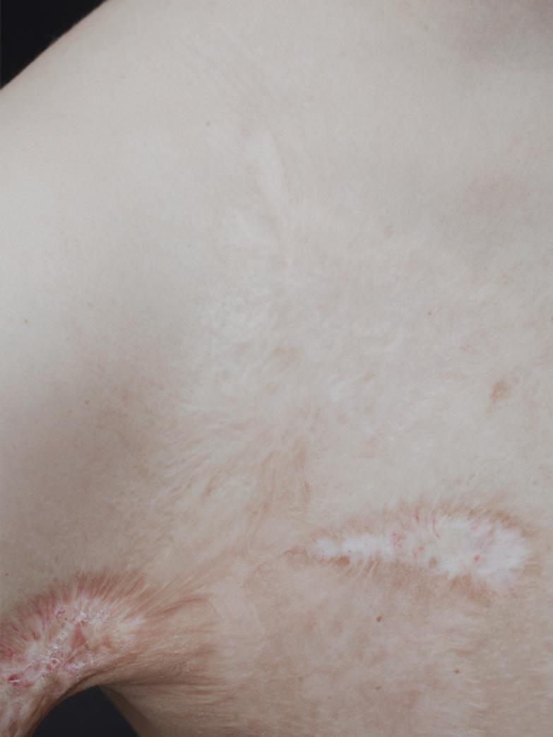 Жизнь со шрамом: Семь историй, оставшихся на теле. Изображение № 5.
