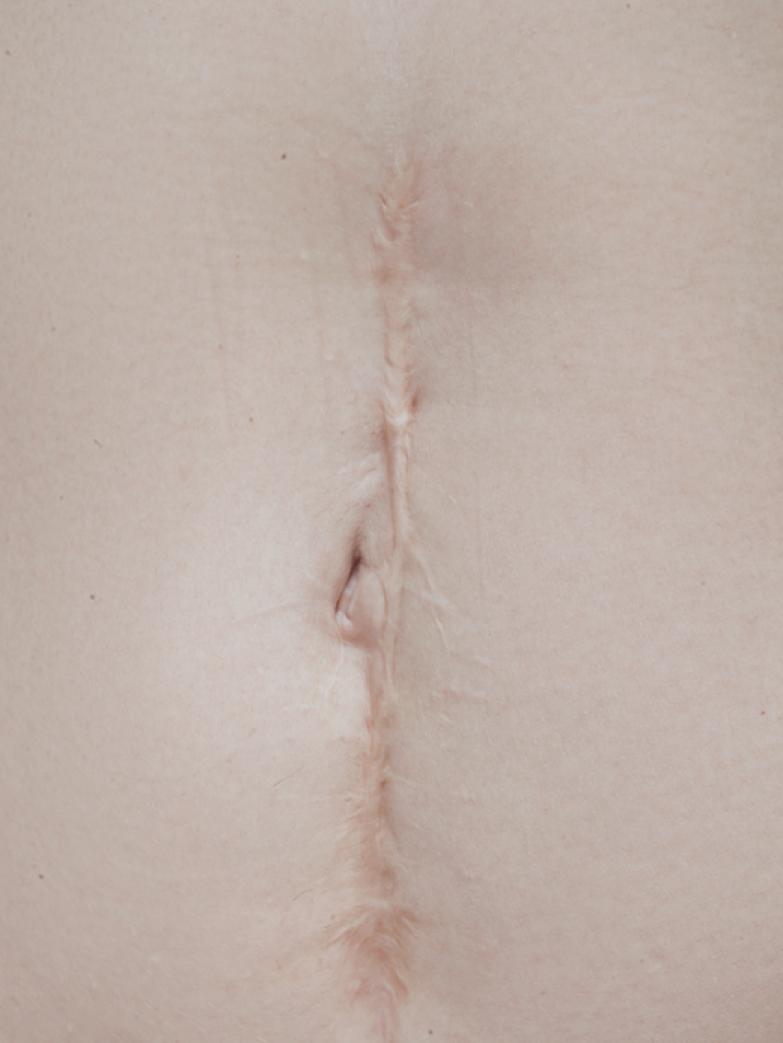 Жизнь со шрамом: Семь историй, оставшихся на теле. Изображение № 2.