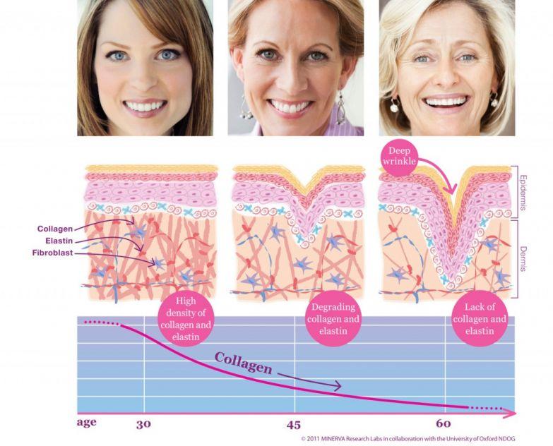 4. С возрастом у нас постепенно прекращается выработка коллагеновых и элластиновых волокон, кожа становиться дряблой, провисает, появляются морщины. Алоэ способствует образованию коллагена, эластина, белковой основы кожи. Каким образом? Возвратимся к составу Алоэ Вера: из 22 аминокислот, имеющихся в организме, 18 содержатся в Алоэ Вера. Аминокислоты являются строительным материалом для белка, а белок нужен для выработки коллагена и эластина.