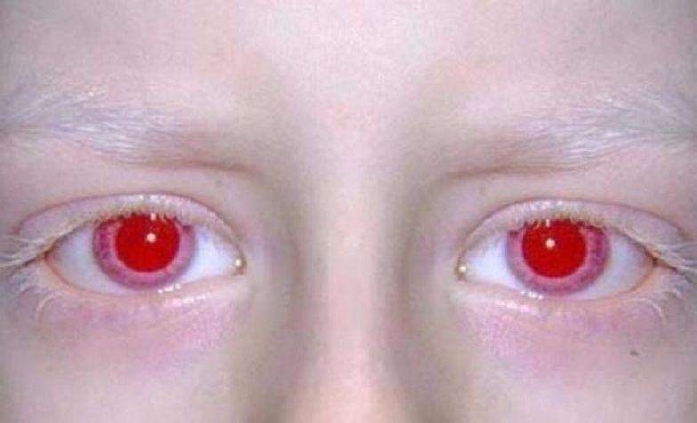 Как сделать белки глаз красные 819
