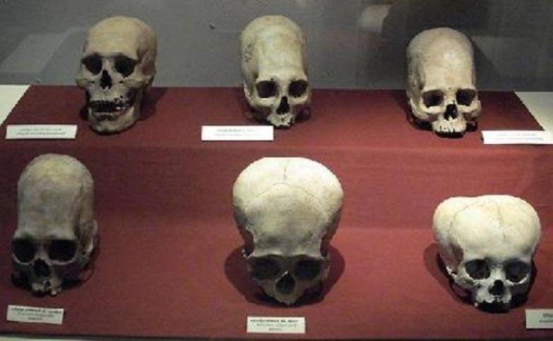 Разные виды деформации черепа