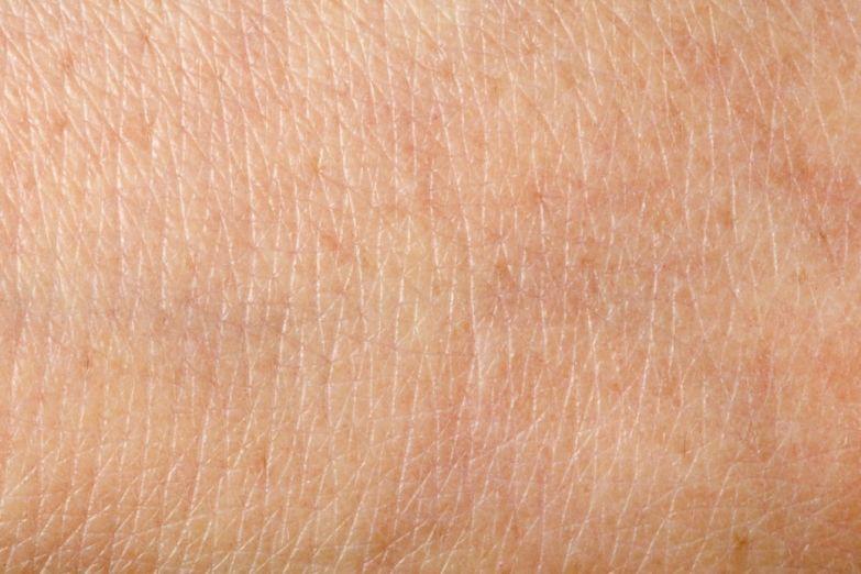 Нормальный процесс: Как меняется кожа и откуда берутся морщины. Изображение № 3.