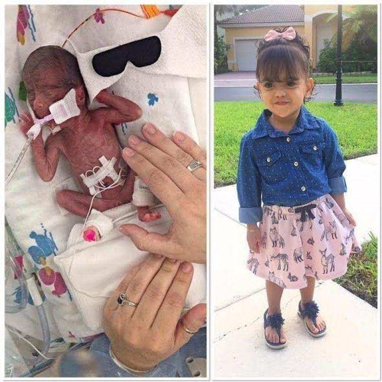 2. Эмили преждевременность, ребенок, роды, тогда и сейчас