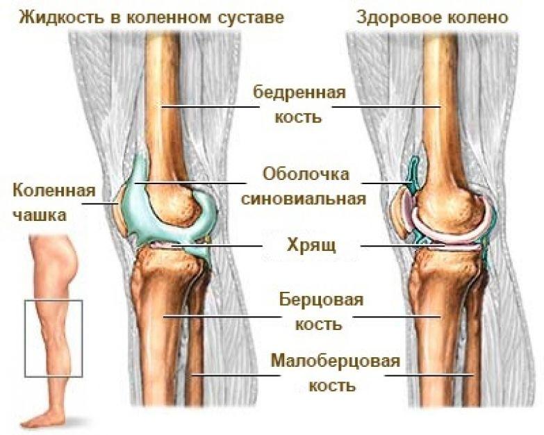 Жидкость в колене - что делать Как убрать жидкость из колена