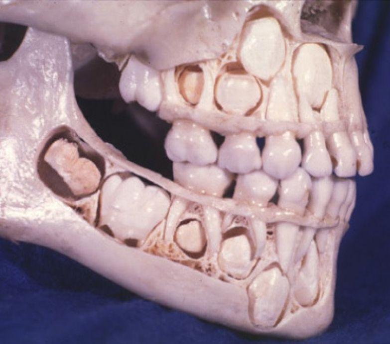 8. Так выглядит череп ребенка до того, как у него выпадают молочные зубы: интересные фото, удивительное рядом, факты