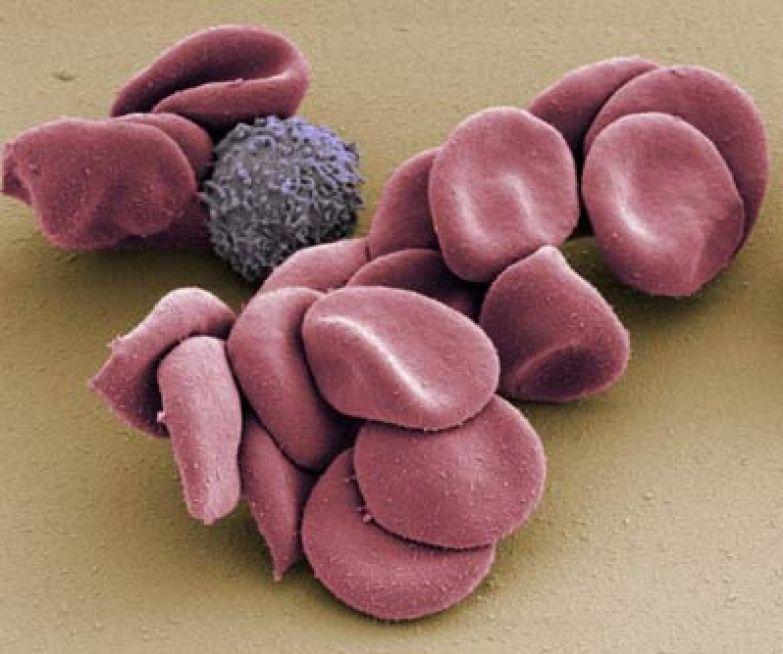 Эритроциты и белая кровяная клетка под электронным микроскопом. (Фото Dr. Thomas Deerinck / Visuals Unlimited / Corbis.)