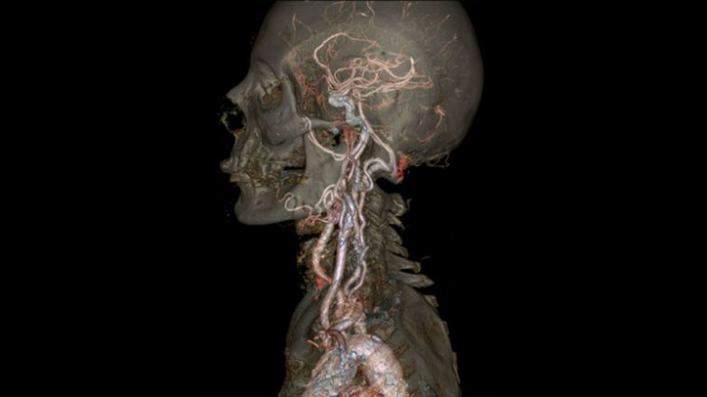 19. Немыслимо точный КТ-сканер «Revolution CT» от корпорации General Electrics: интересные фото, удивительное рядом, факты