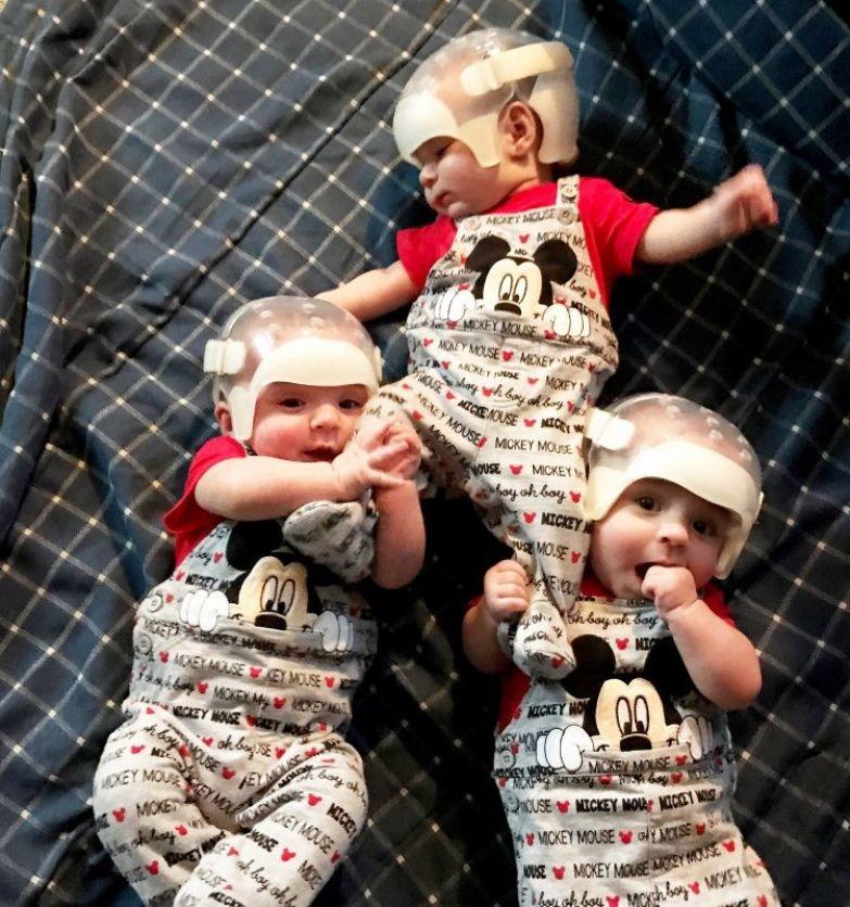 Один шанс на 500 триллионов: почему эти тройняшки носят специальные шлемы? дети, интересное, тройняшки