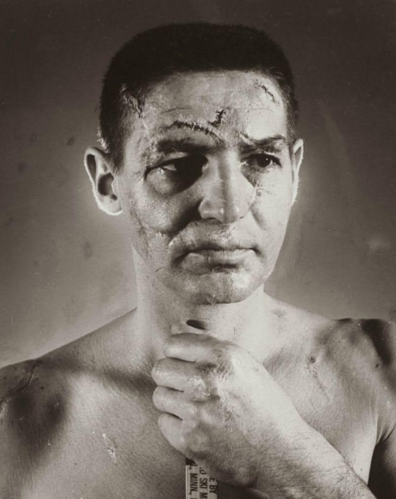 Лицо хоккейного вратаря Терри Савчука. В то время маска не была обязательным элементом. 1966 год