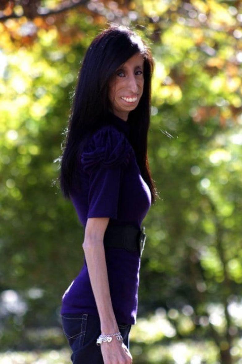 Самая некрасивая женщина на свете демонстрирует настоящую красоту Лиззи Веласкес, синдром Видемана-Раутенштрауха