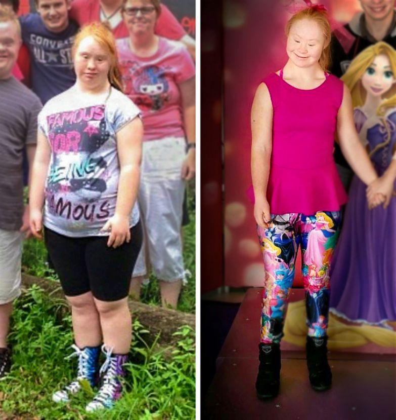 22-летняя модель с синдромом Дауна намерена стать «ангелом» Victoria's Secret и изменить представление о красоте