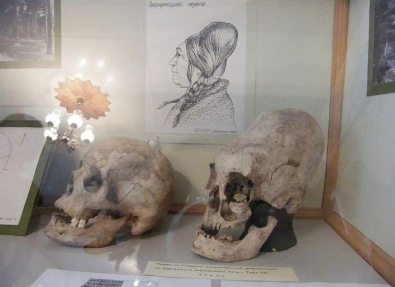Обычай деформации черепа был распространен у индейцев