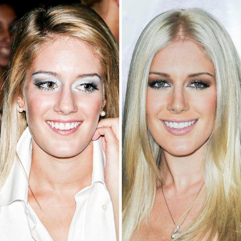 8 знаменитых женщин, которые решились на незаурядные изменения внешности и вызвали бум в сети
