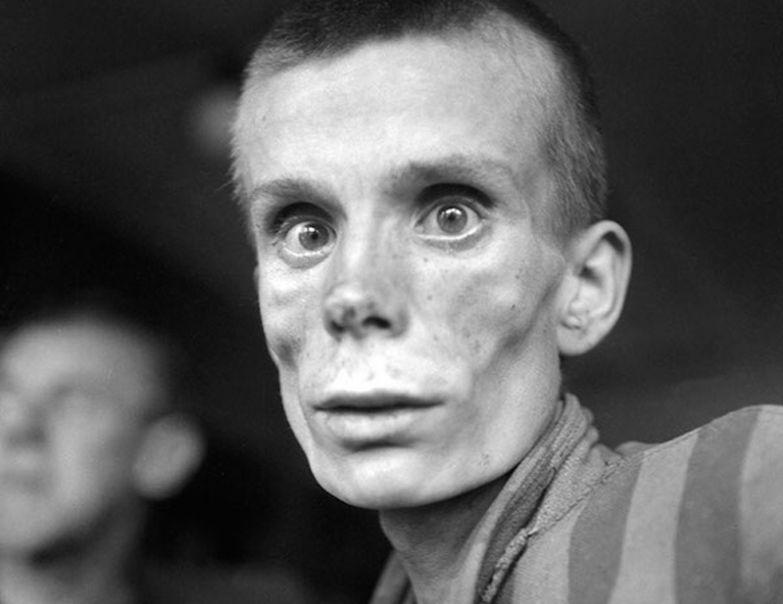 Истощенная 18-летняя русская девушка в день освобождения из концентрационного лагеря Дахау в 1945-м