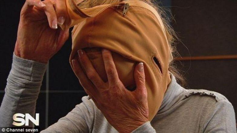 Девушка сняла маску, которую носила 2,5 года