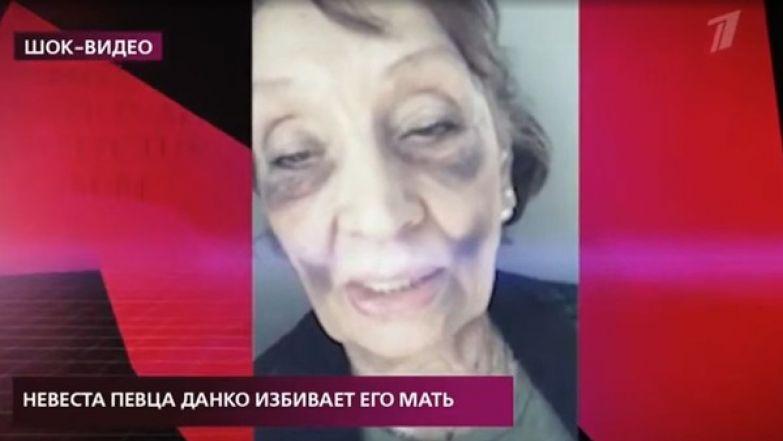 Женщина показала результат нападения